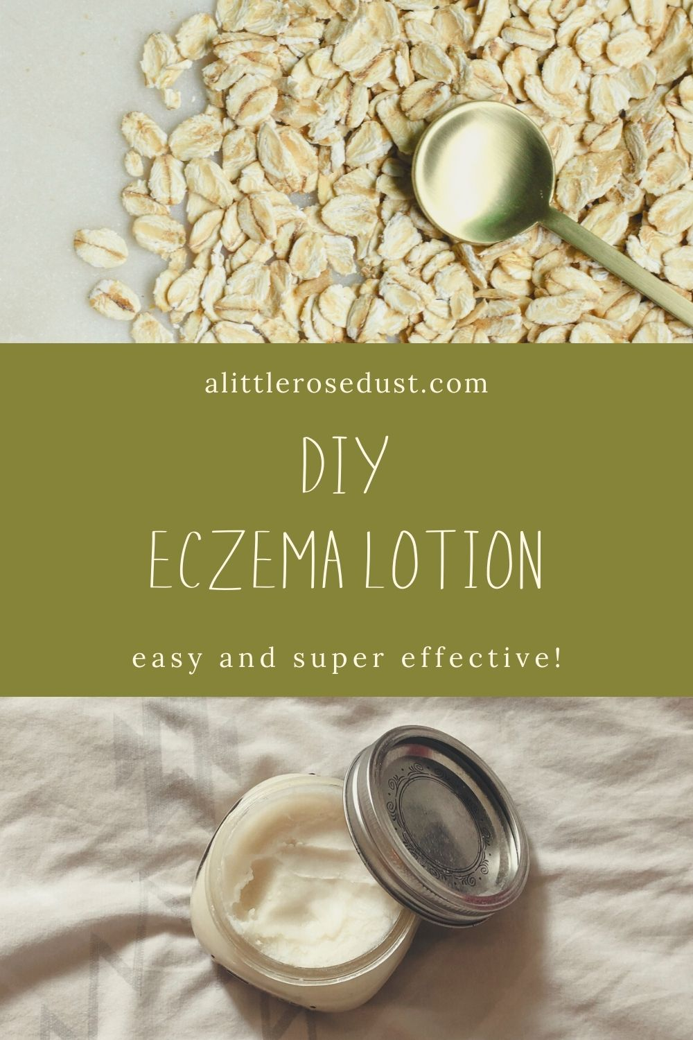 diy eczema lotion